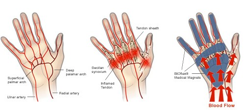 please come and see us at coffs coast hand therapy for advice and treatment  in regards to you trigger finger/s